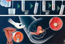 L'insémination intra-utérine (IIU)