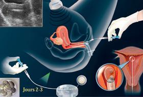 Transfert d'embryons pour les interventions de FIV
