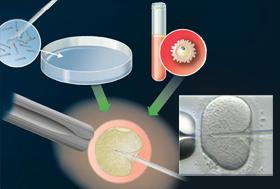 Injection intracytoplasmique d'un spermatozoïde (IICS)